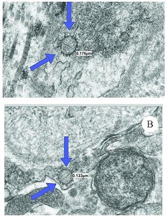 【防疫注意】感染《新冠肺炎》恐成「舉弱男」?美國研究:病毒躲GG超過6個月!