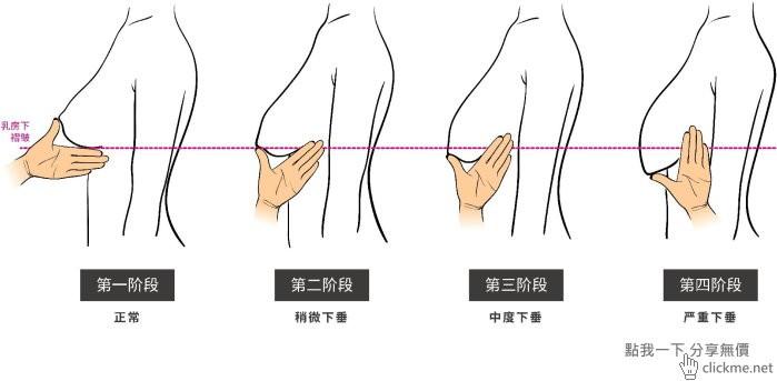 只要用2根手指頭,就可以知道女朋友胸部的下垂程度!