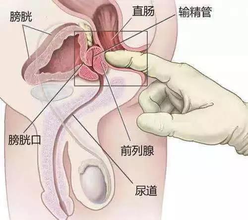 男性前列腺高潮是啥樣?
